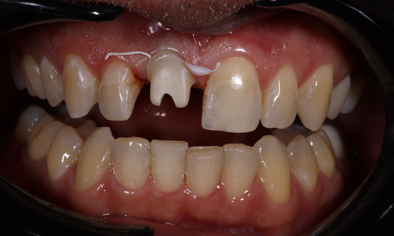 Implant-Single-Crown-Match-Before-Image